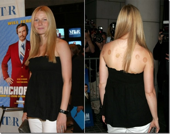 gwyneth-paltrow-cupping